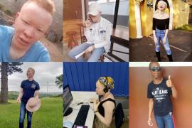 albinsm day